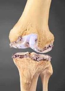 Как лечить остеопороз народная медицина