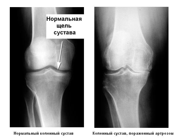 Гонартроз голеностопный сустав туберкулез галина сустав народная медицина
