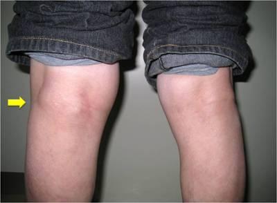 Киста Бейкера фото перед лечением