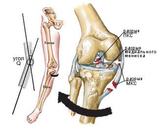 Изображение - Медиальная коллатеральная связка коленного сустава koleno_mks2