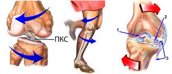 Разрыв крестообразной связки коленного сустава симптомы виды лечение