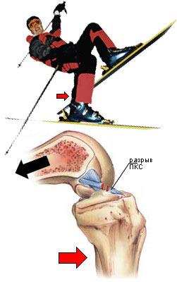 повреждение передней крестообразной связки