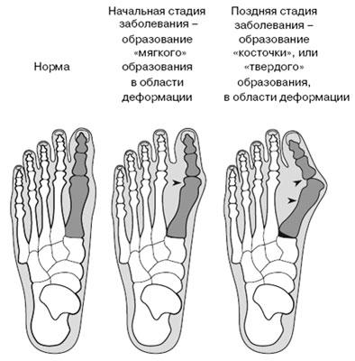 Вальгусная деформация большого пальца стопы стадии развития