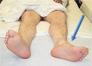 """Перелом """"шейки бедра"""" – симптомы, лечение, реабилитация"""