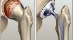 Замена сустава Запорожье клиника ортопедии