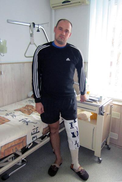 Артроскопия колена отзыв пациента из Днепрорудного
