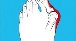 Косточка на ноге лечение Запорожье