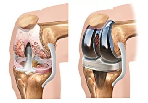 Эндопротезирование суставов - Замена сустава Запорожье