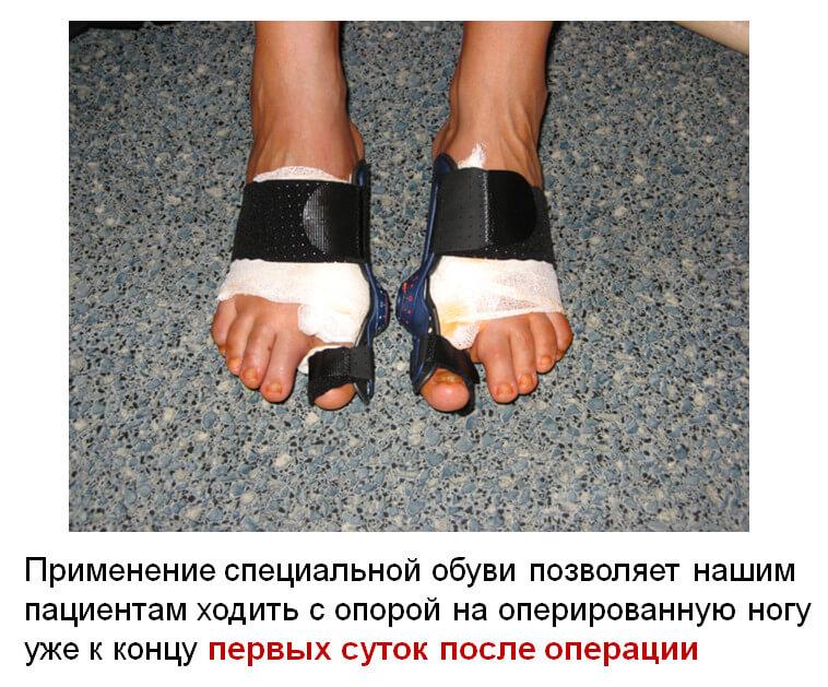 Операция по удалению косточек на ногах реабилитация
