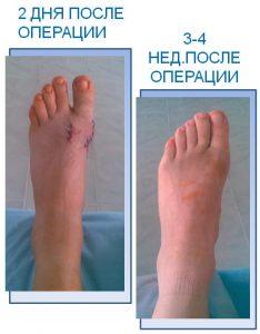 Операция вальгусной деформации первого пальца стопы