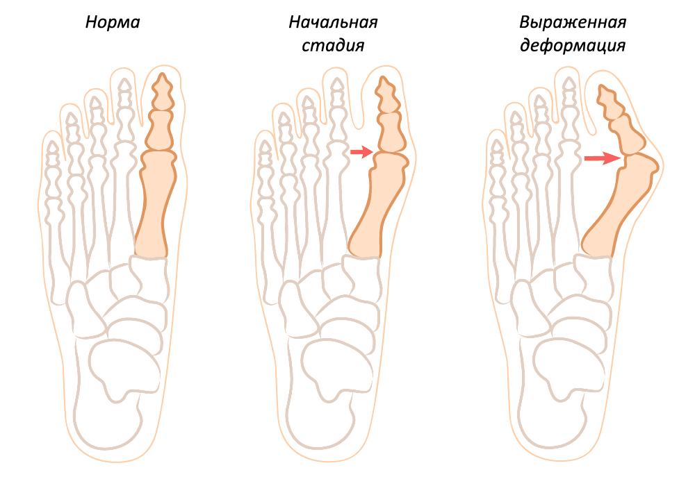 Стадии образования косточки шишки на ноге