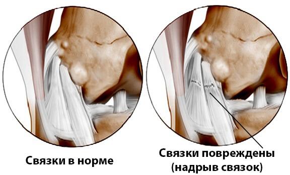 Надрыв связок коленного сустава - частичный разрыв