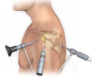 Артроскопия плечевого сустава Запорожье