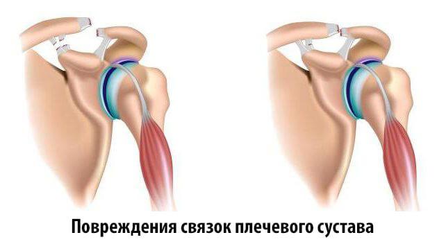 Повреждения Разрыв связок плечевого сустава