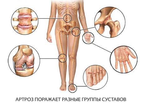 Артроз суставов лечение в Запорожье