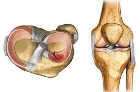 Разрыв заднего рога мениска коленного сустава