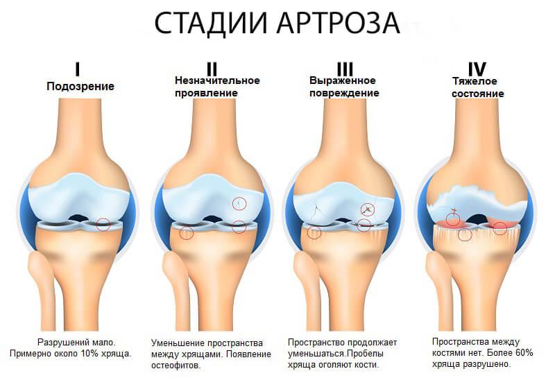 Стадии артроза остеоартроза