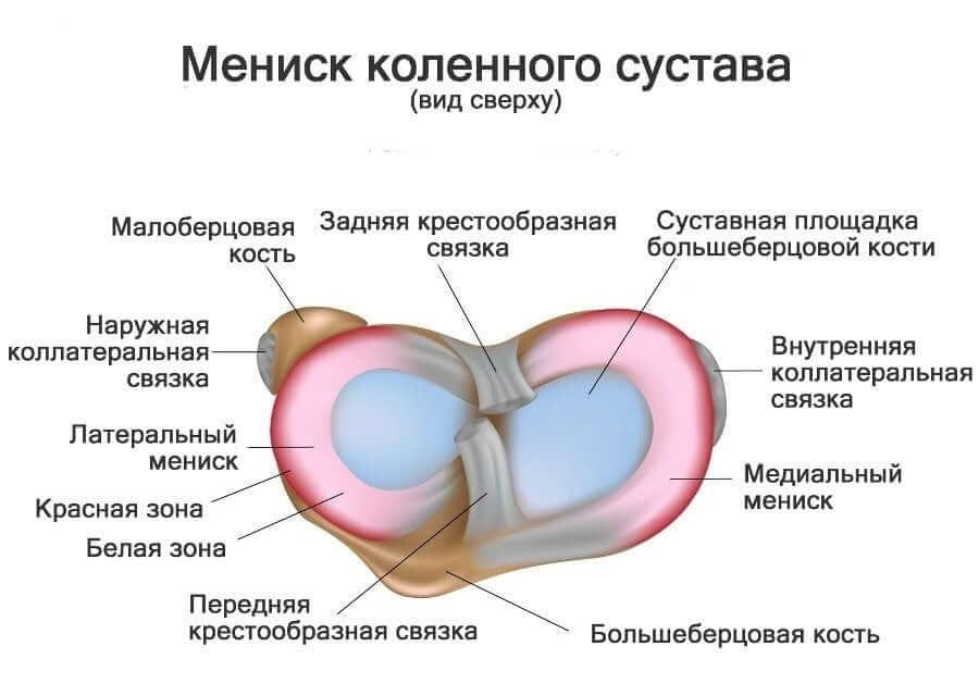 Лечение разрыва заднего рога медиального мениска колена