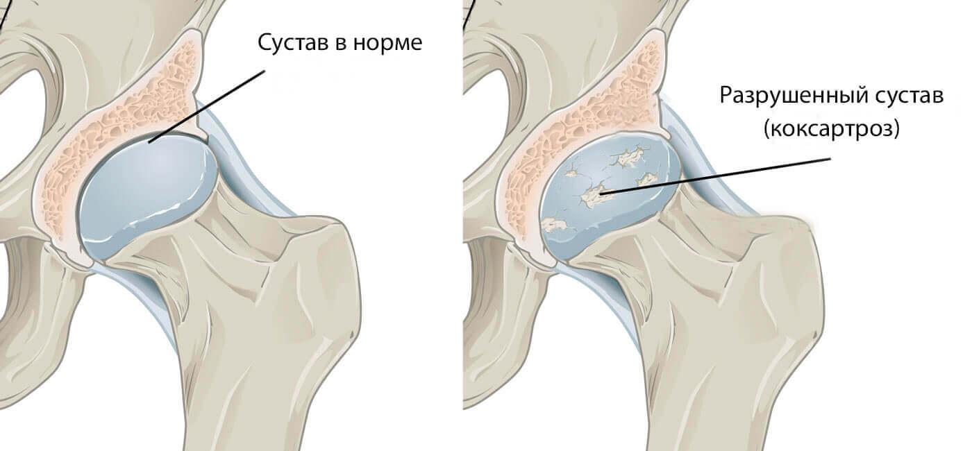 Лечение артроза тазобедренного сустава Запорожье
