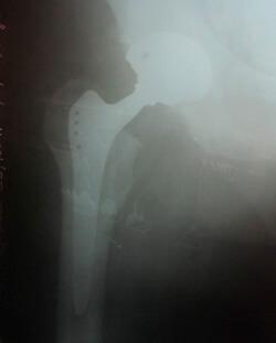 Как лечить остеоартроз тазобедренного сустава