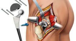 Ревизионное эндопротезирование тазобедренного сустава Запорожье